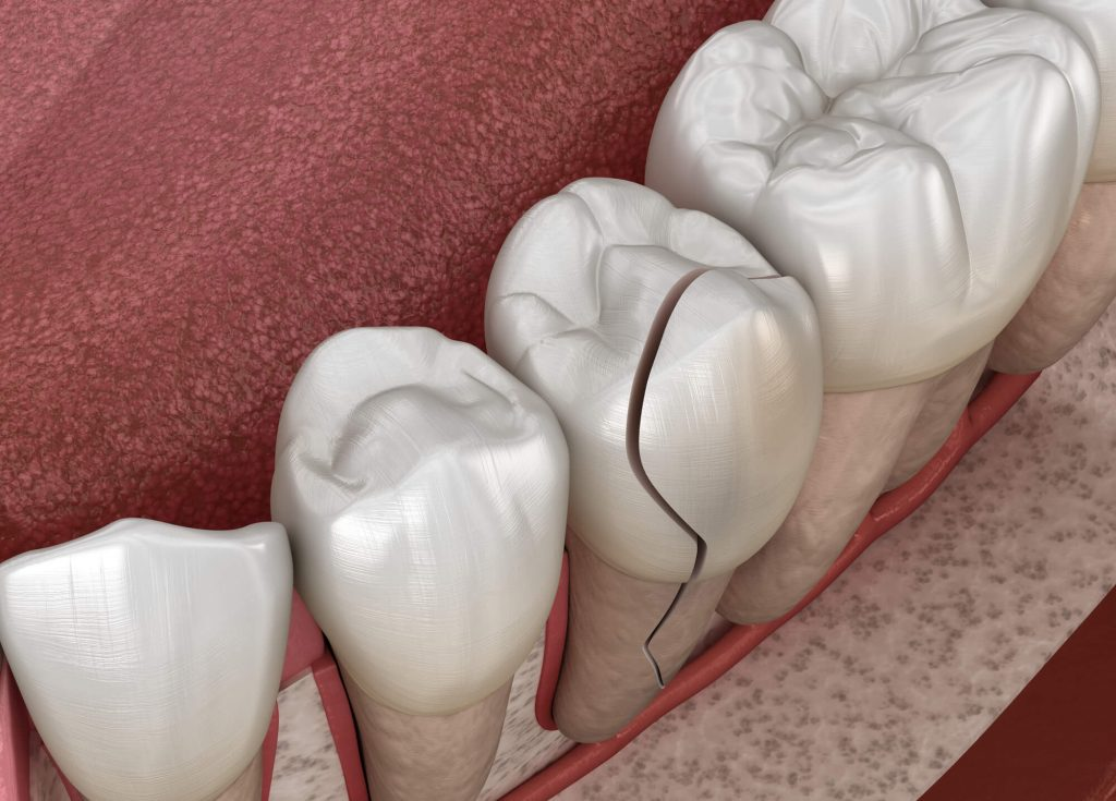 Where can I find emergency dental services new smyrna beach?