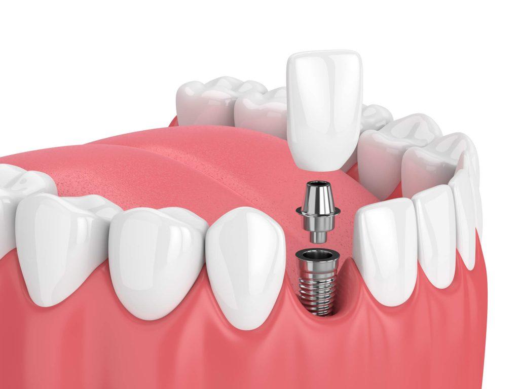 where can i get dental implants new smyrna beach?